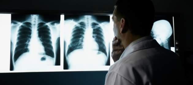 Snímky pľúc