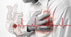 Infarkt myokardu - srdcový infarkt