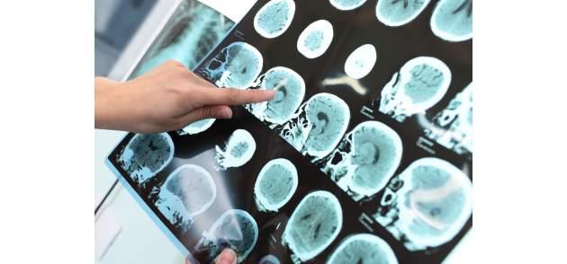 Snímky mozgu