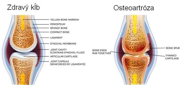 Osteoartróza