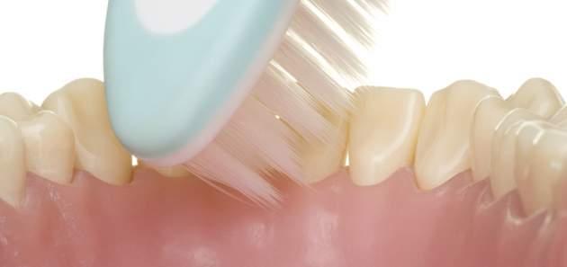 umyvanie_zubov_technika