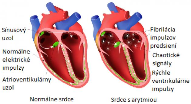 srdce a arytmia