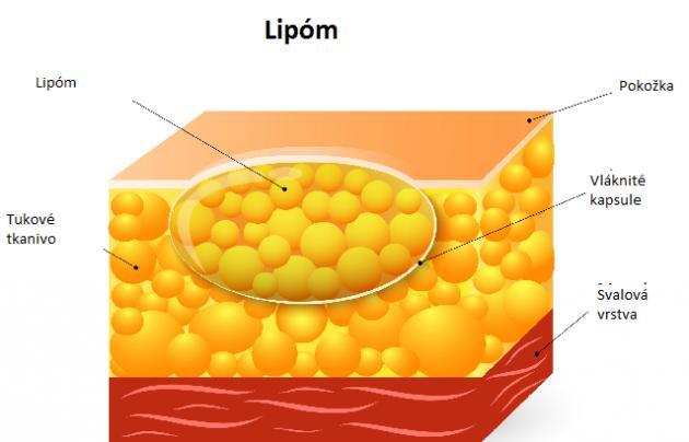 lipóm