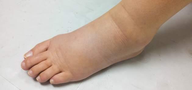 Lymfedém na nohe