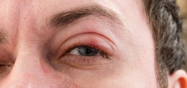 trachom_opuchnute_oko
