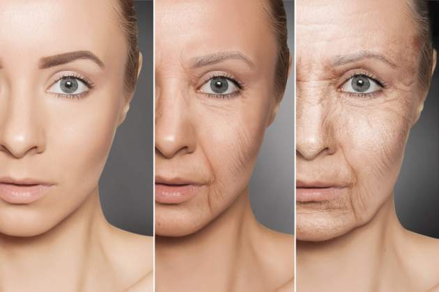 Starnutie kože