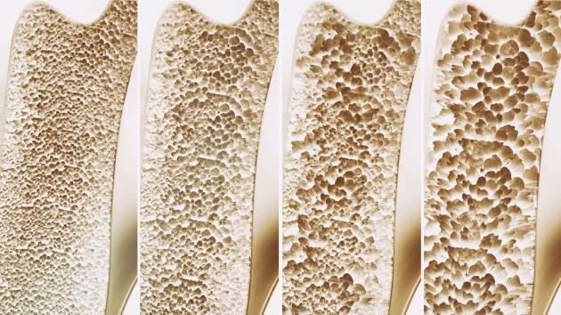 štádiá osteoporózy