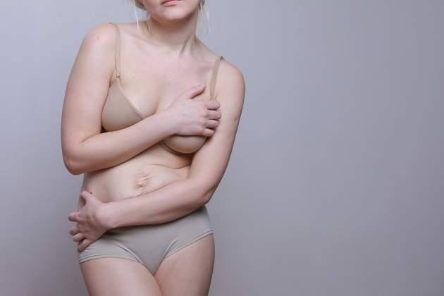 Ženské telo po pôrode
