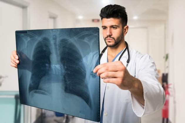 Doktor s RTG pľúc