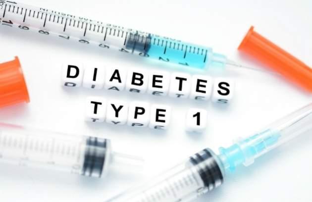 Cukrovka 1. typu