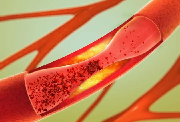 Arterioskleróza a vplyv výživy