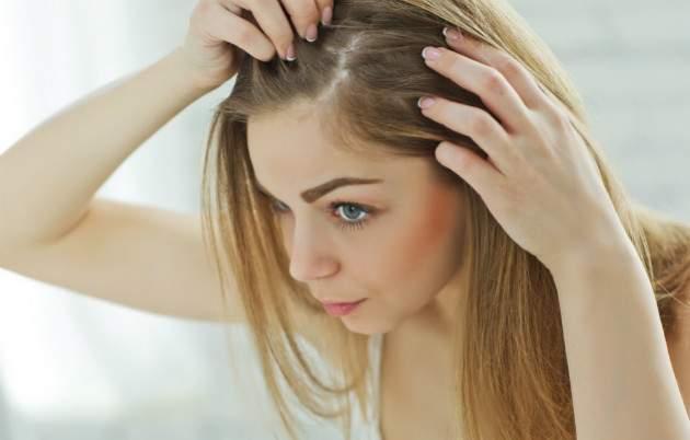 Vypadávanie vlasov