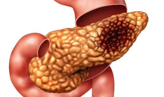 Rakovina pankreasu