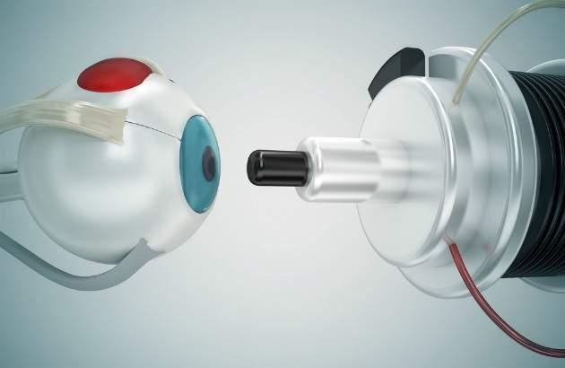 Laserová operácia očí
