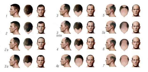 vypadavanie vlasov - fazy