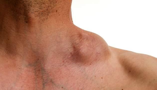 Non - Hodgkinov lymfóm