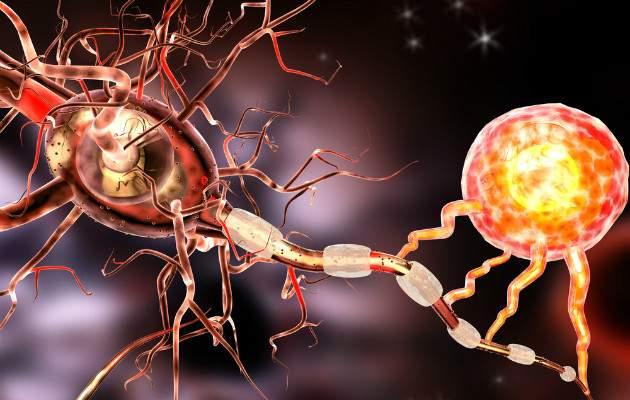 Skleróza multiplex