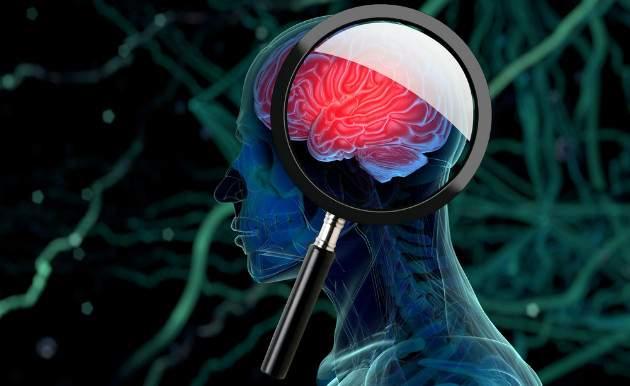 Hĺbková stimulácia mozgu