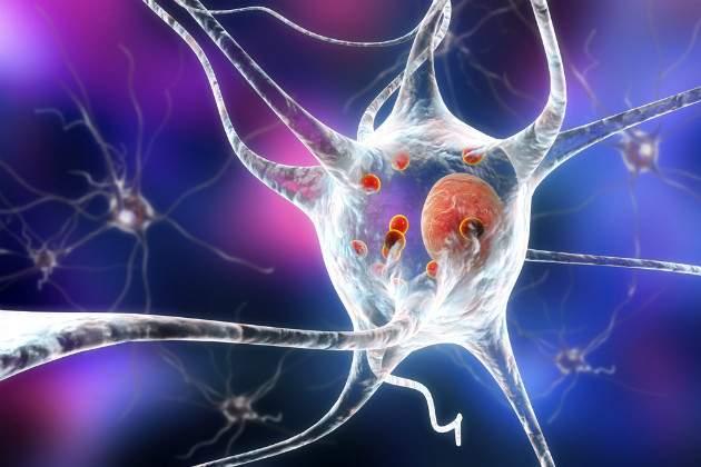Neuróny pri Parkinsonovej chorobe