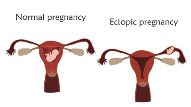 Mimomaternicové tehotenstvo