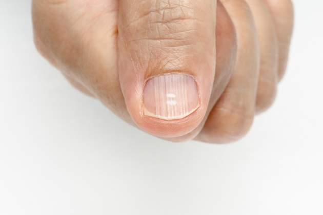 biele bodky na nechtoch