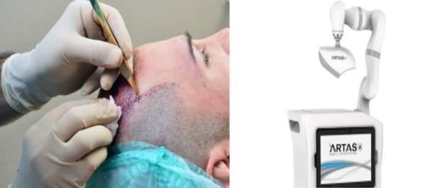 Techniky transplantácie vlasov