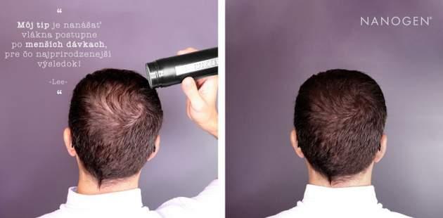 Vlasové keratínové vlákna Nanogen