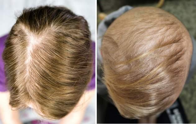 alopecia - vypadávanie vlasov