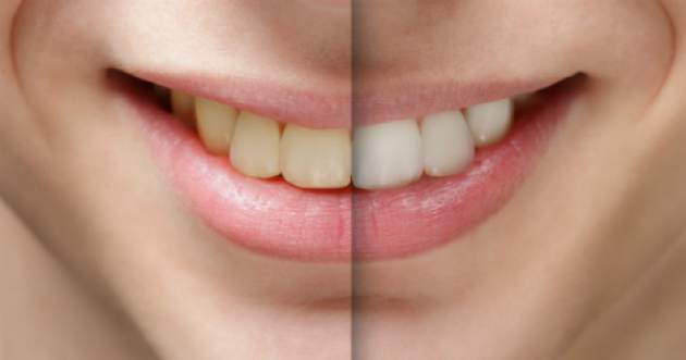 Biely úsmev