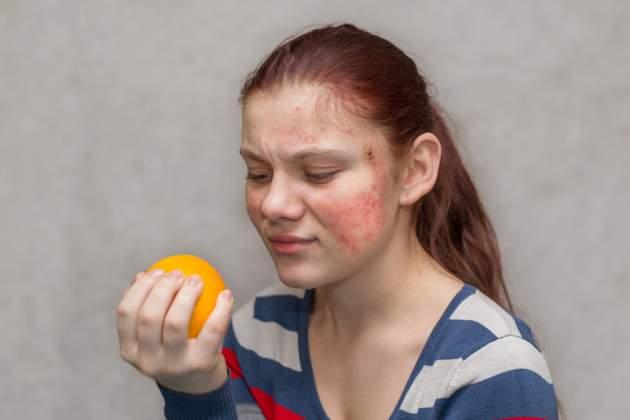 Alergia a vyrážky