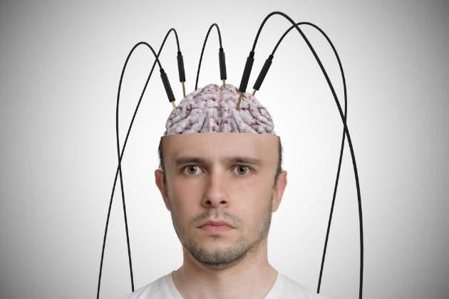 Elektródy  v mozgu