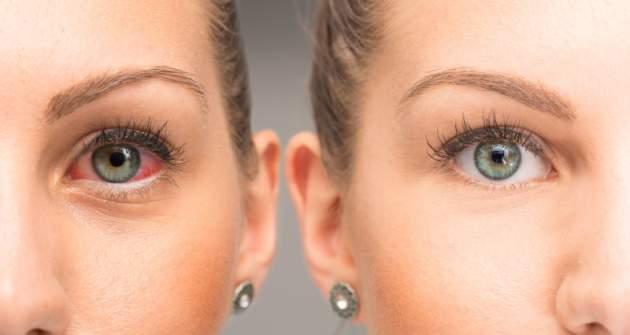 Začervenané oči môžu byť príznakom závažného ochorenia