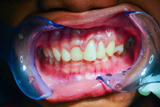 zuba a Parodontitída