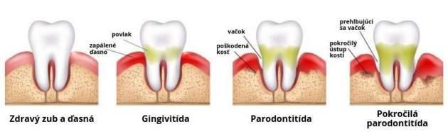 Štádiá parodontitídy , paradentozy
