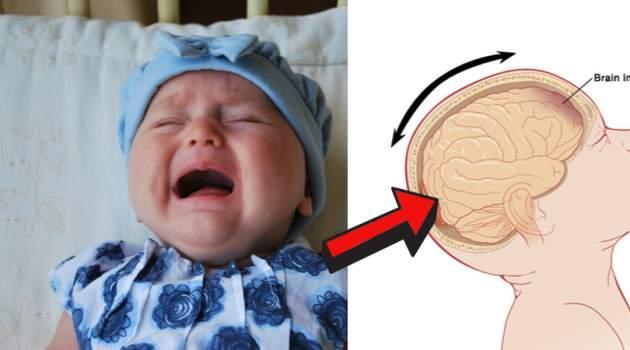 syndróm traseného dieťaťa