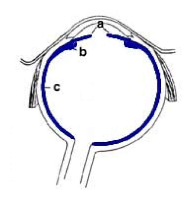 Refrakčné chyby oka - ďalekozrakosť efeb8fe7ea4