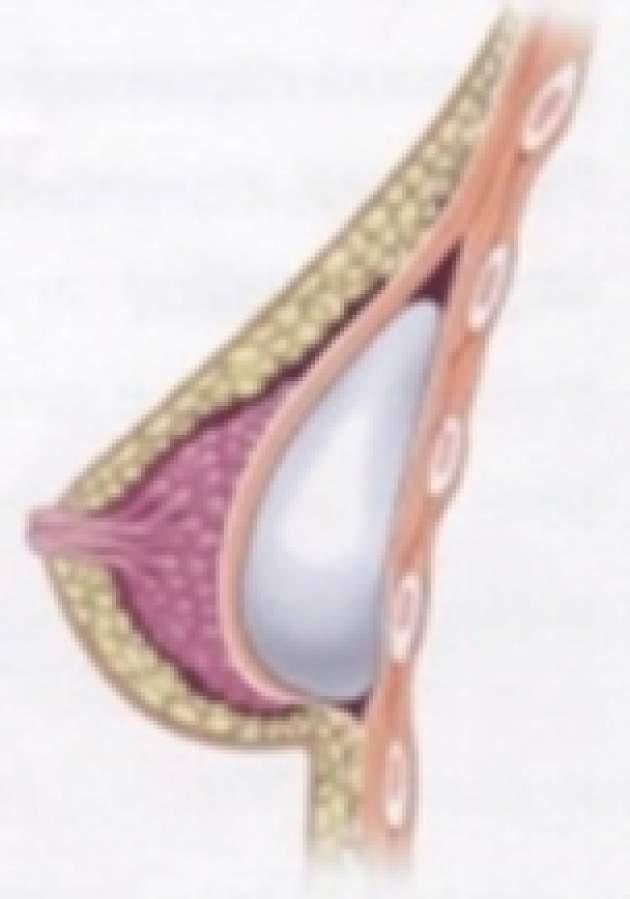 prsnikovy implantat pod sval