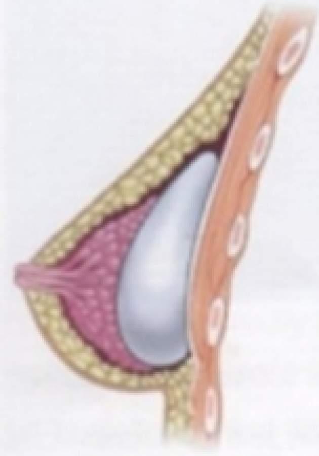 silikonovy implantat pod zlazu
