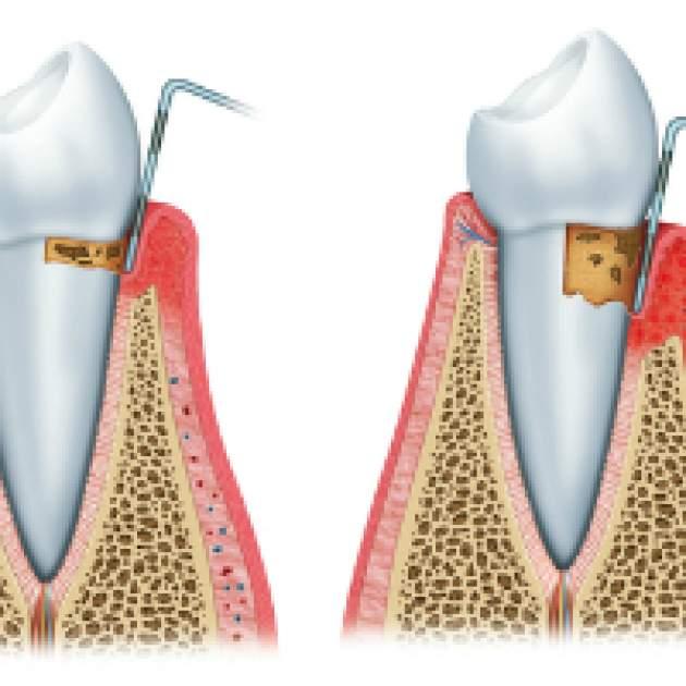 parodontitída