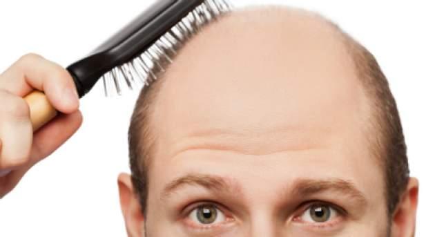 Každý vlas vyrastá z folikulu (vlasového vačku) 70eae671bb7