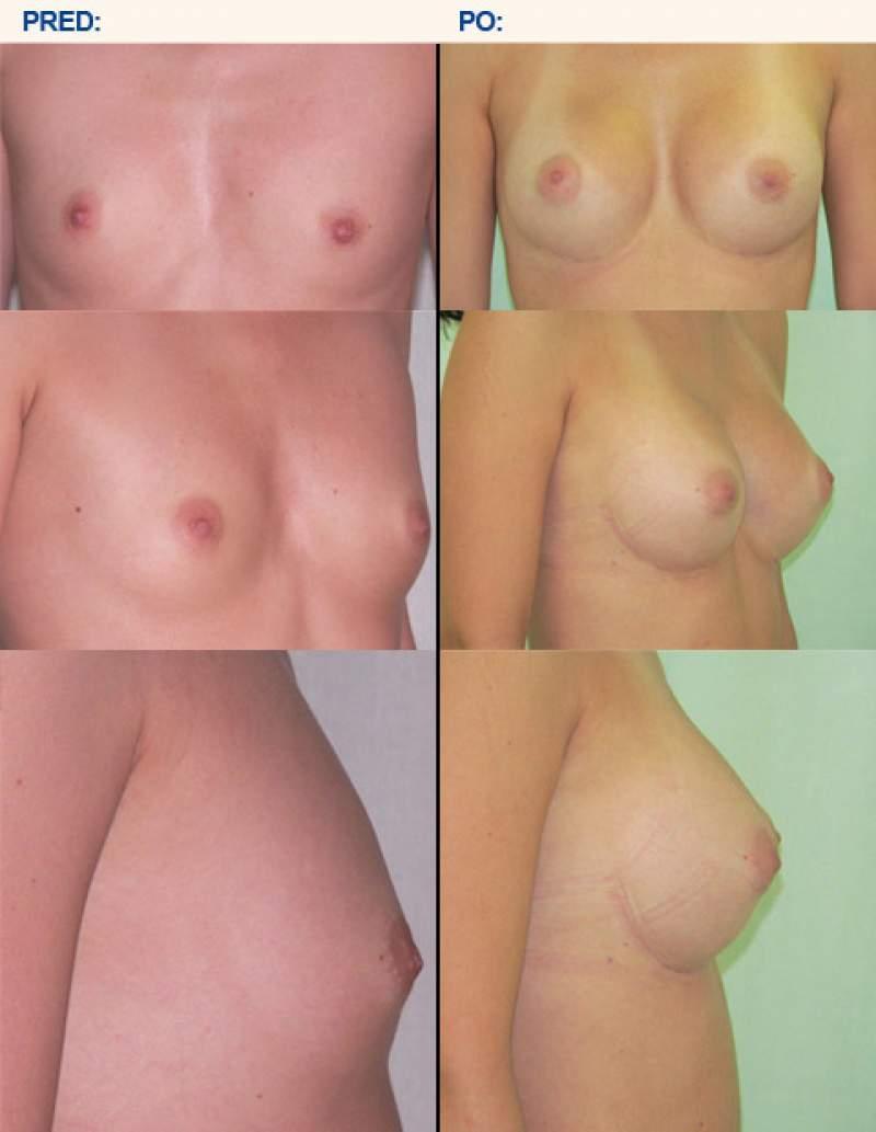 Silikónové prsia pred a po