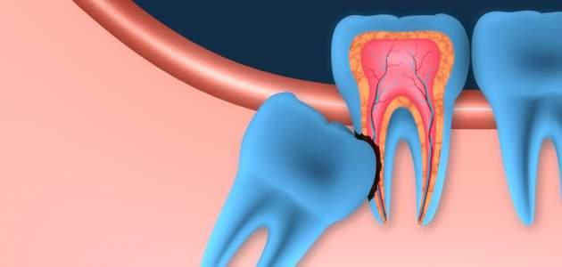 Zuby múdrosti sa zväčša normálne neprerežú - čo s nimi?