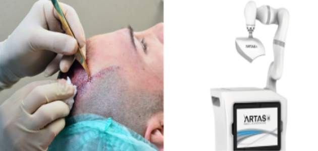 Roboty verzus lekári: kto je lepší pri transplantácii vlasov?
