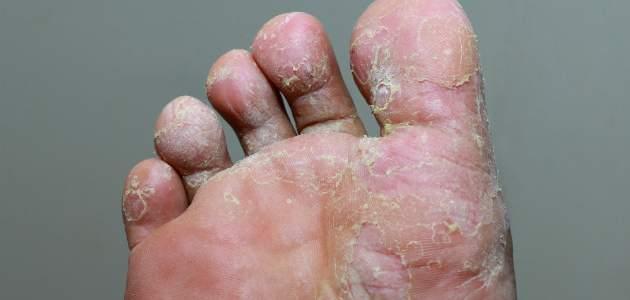 Atletická noha: infekčný problém bežcov