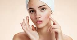5 vecí, ktoré môže prezradiť stav vašej pokožky o vašom zdraví