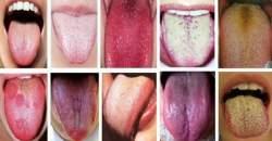 Čo znamená povlak na jazyku alebo jeho tŕpnutie?