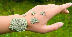 Plochý lišaj (lichen planus)