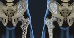 4 kroky ako predísť osteoporóze