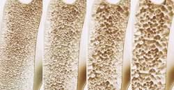 Liečba osteoporózy - znížte riziko vzniku zlomeniny