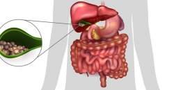Zápal žlčníka (cholecystitída, cholecystitis)